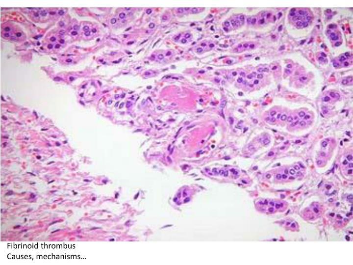 Fibrinoid thrombus