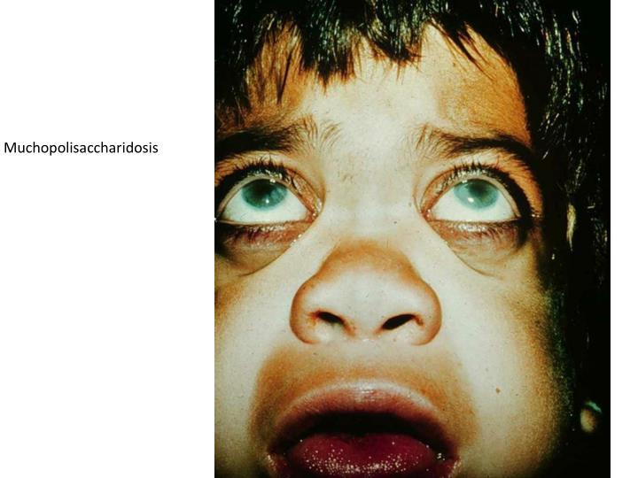 Muchopolisaccharidosis