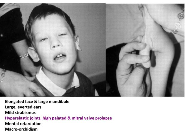 Elongated face & large mandibule