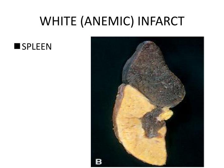 WHITE (ANEMIC) INFARCT