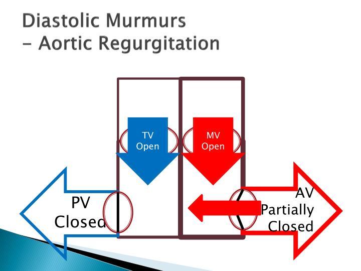 Diastolic Murmurs