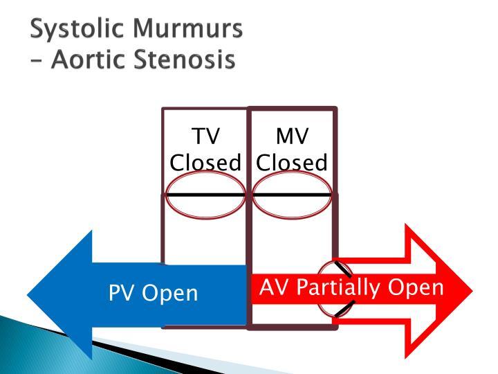 Systolic Murmurs