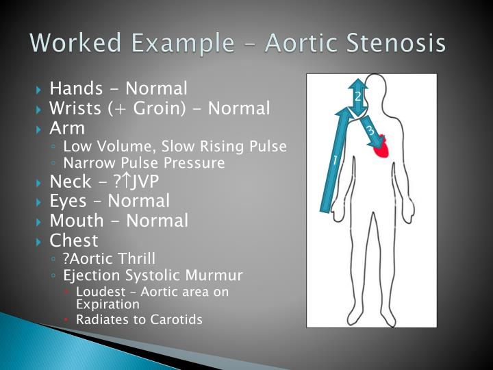 Worked Example – Aortic Stenosis