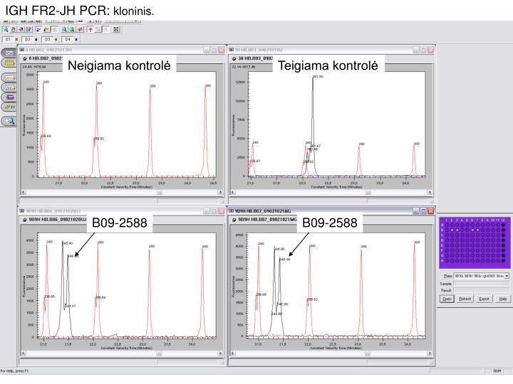 IGH FR2-JH PCR: