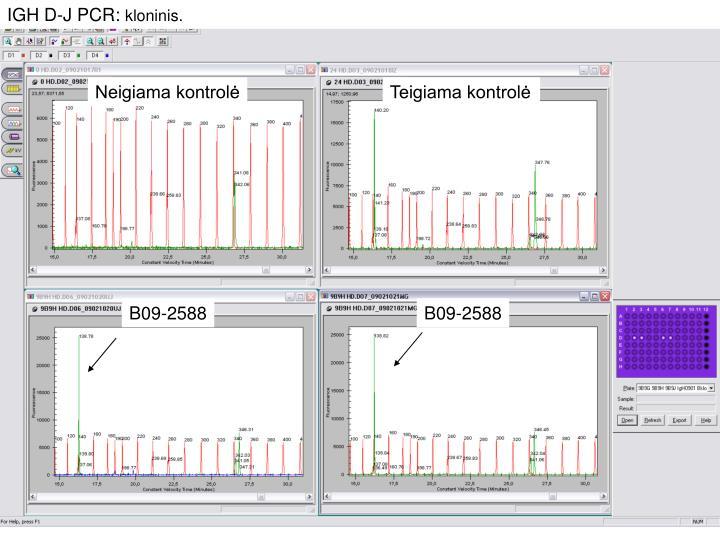 IGH D-J PCR: