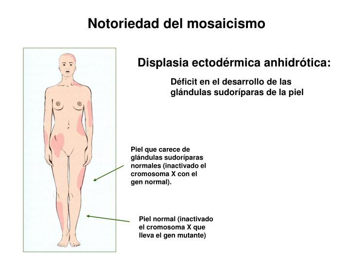Piel que carece de glándulas sudoríparas normales (inactivado el cromosoma X con el gen normal).