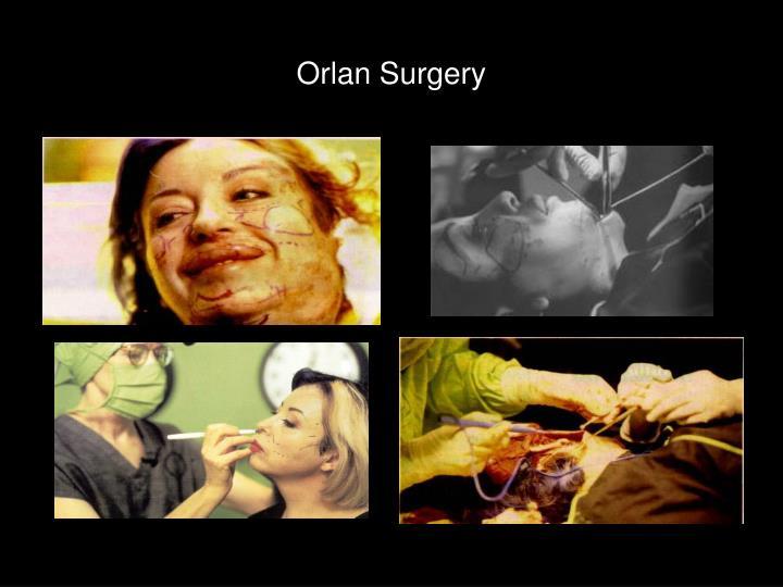 Orlan Surgery