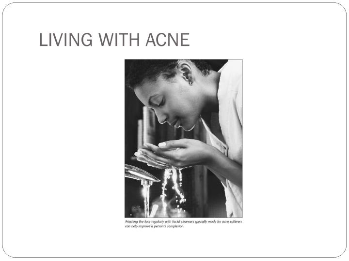 LIVING WITH ACNE