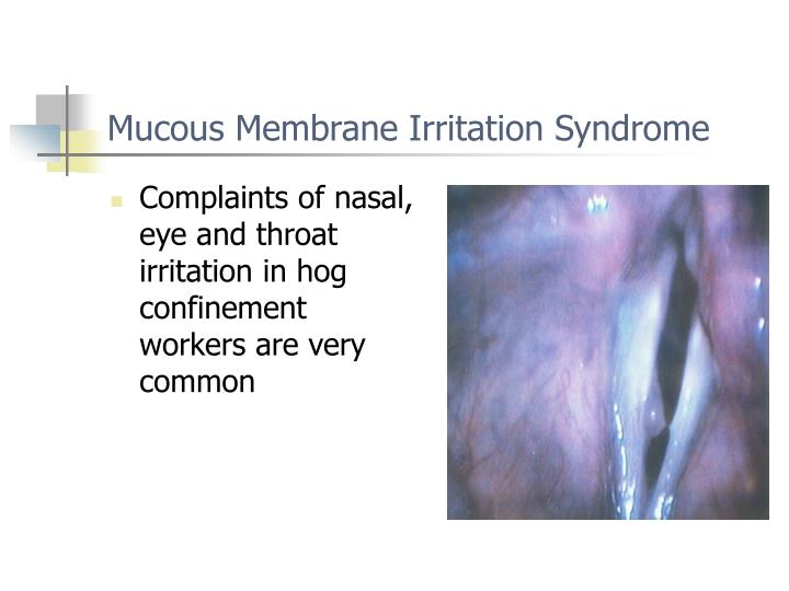 Complaints of nasal, eye and throat irritation in hog confinement workers are very common
