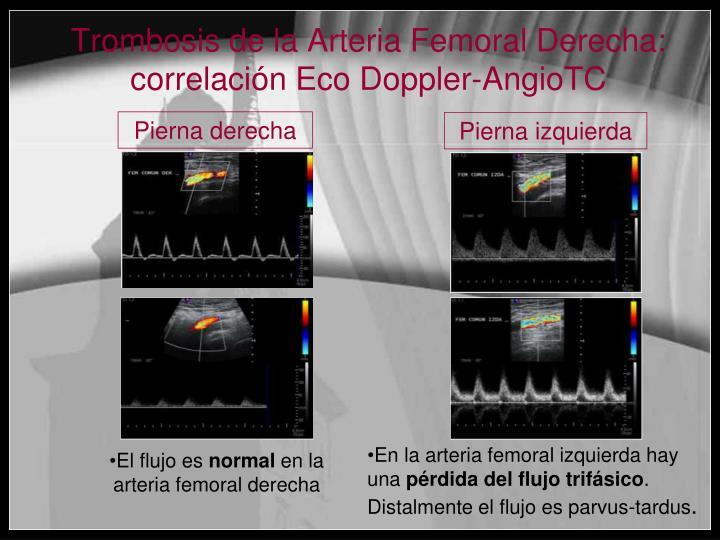 Trombosis de la Arteria Femoral Derecha: correlación Eco