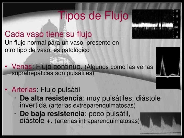 Tipos de Flujo