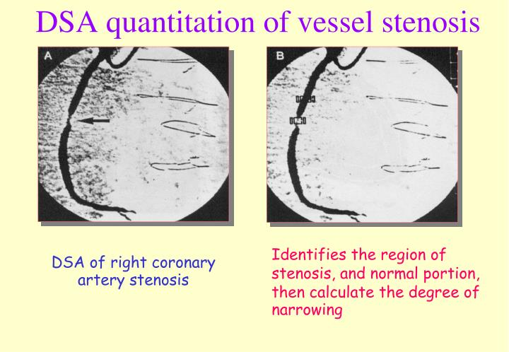 DSA quantitation of vessel stenosis