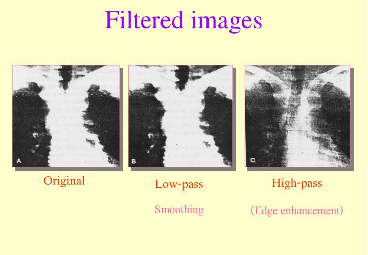 Filtered images