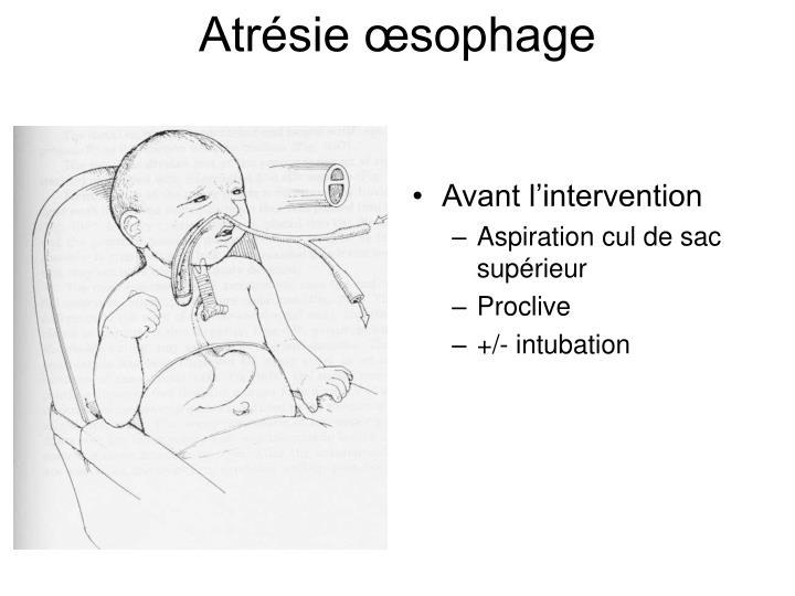 Atrésie œsophage