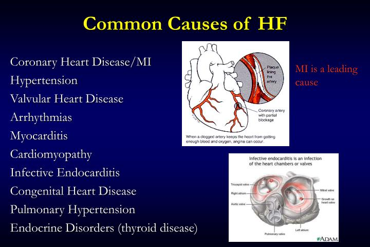 Common Causes of HF
