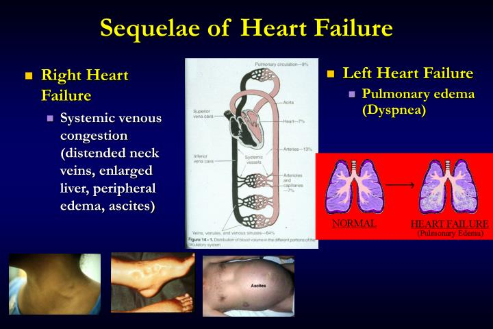 Right Heart Failure