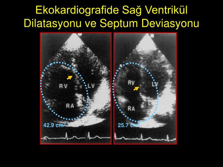 Ekokardiografide Sağ Ventrikül Dilatasyonu ve Septum Deviasyonu
