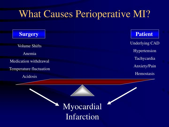 What Causes Perioperative MI?