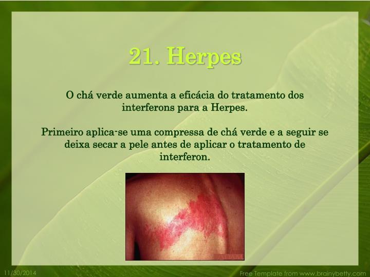 21. Herpes