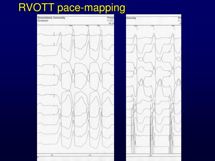 RVOTT pace-mapping