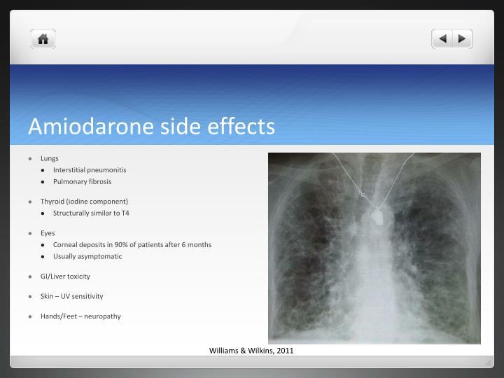 Amiodarone side effects