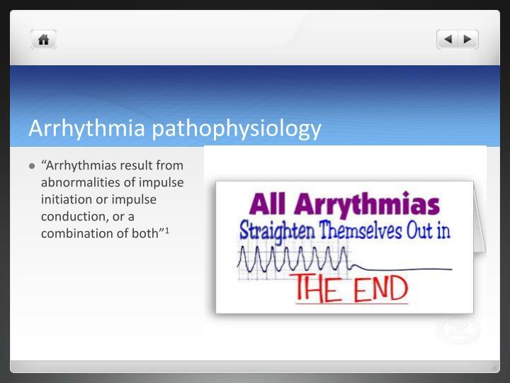 Arrhythmia pathophysiology