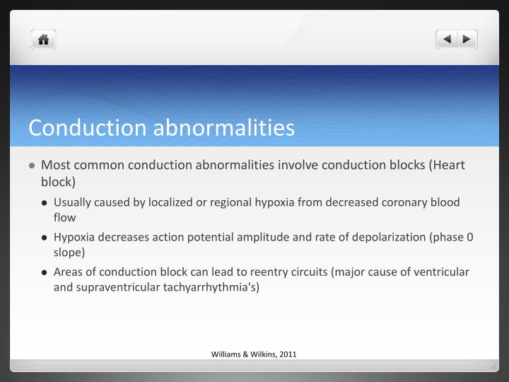 Conduction abnormalities