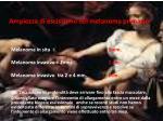 ampiezza di escissione del melanoma primario