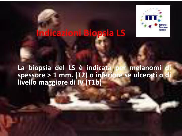 Indicazioni Biopsia LS