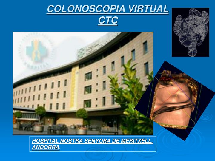 COLONOSCOPIA VIRTUAL
