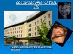 colonoscopia virtual ctc
