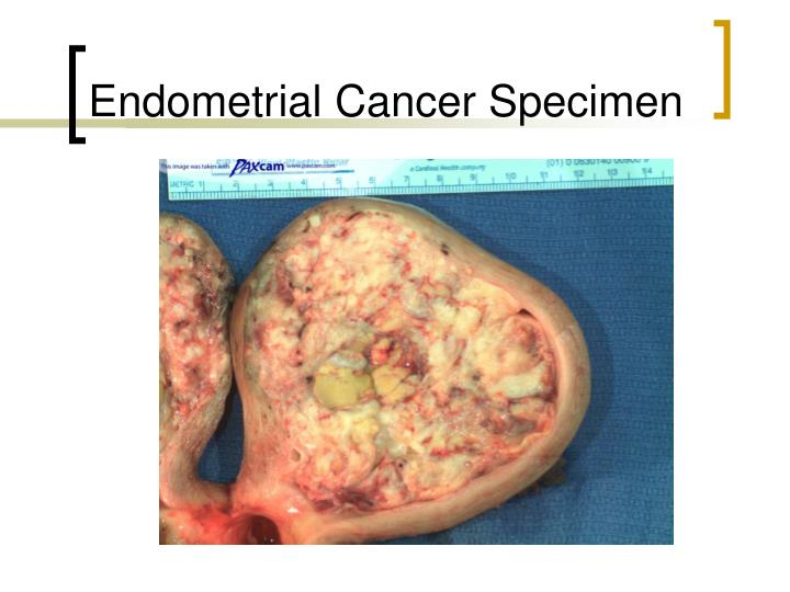 Endometrial Cancer Specimen