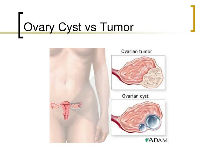 Ovary Cyst vs Tumor