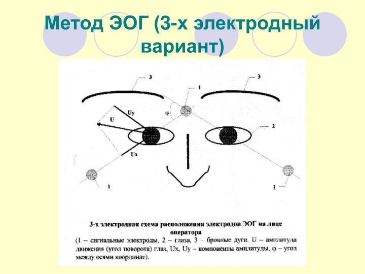 (3-  )