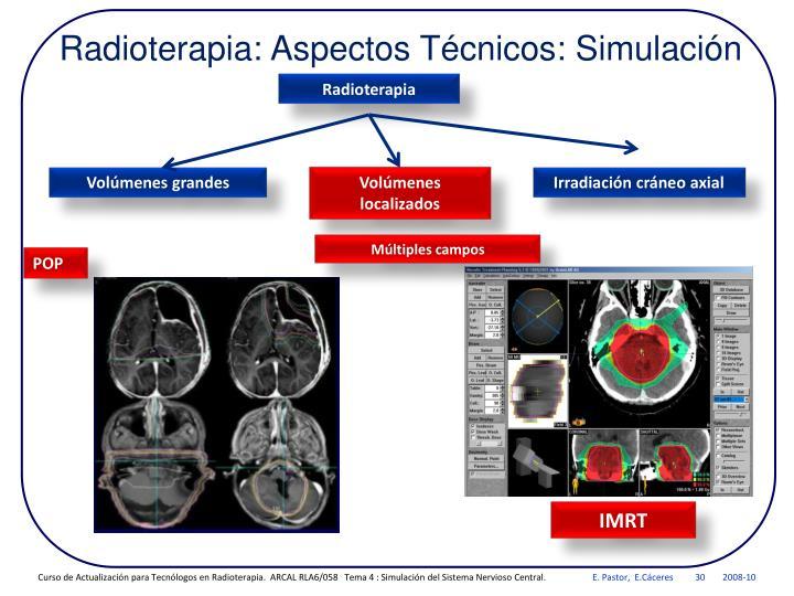 Radioterapia: Aspectos Técnicos: Simulación