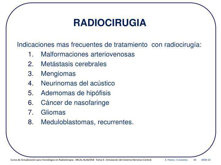 Indicaciones mas frecuentes de tratamiento  con radiocirugía: