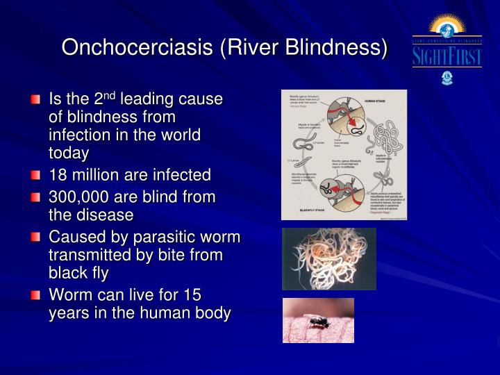 Onchocerciasis (River Blindness)
