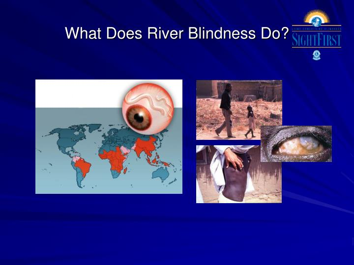 What Does River Blindness Do?