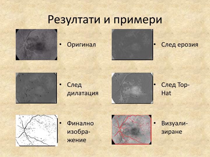 Резултати и примери