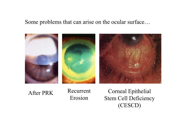 Some problems that can arise on the ocular surface…