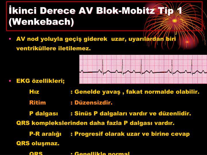 İkinci Derece AV Blok-Mobitz Tip 1
