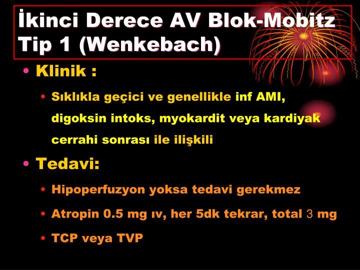 İkinci Derece AV Blok-Mobitz Tip 1 (Wenkebach)