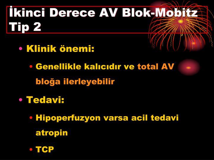 İkinci Derece AV Blok-Mobitz Tip 2