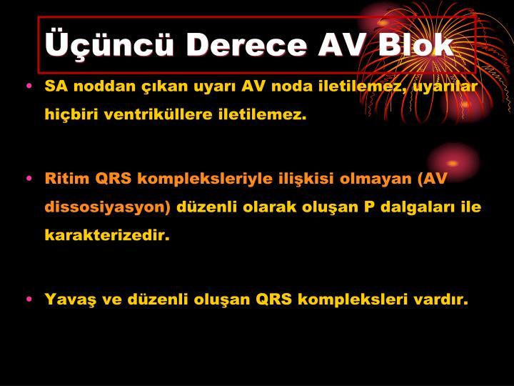 Üçüncü Derece AV Blok