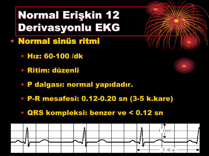 Normal Erişkin 12 Derivasyonlu EKG