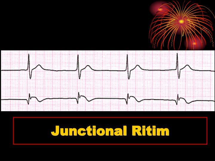 Junctional