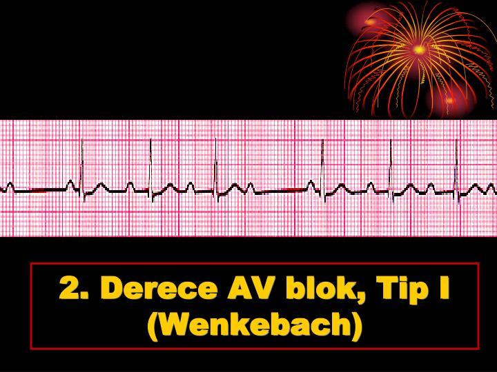 2. Derece AV blok, Tip I
