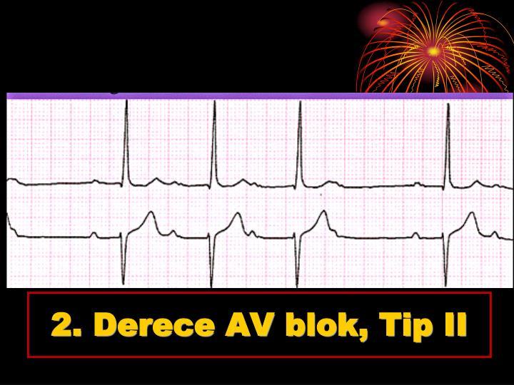 2. Derece AV blok, Tip II