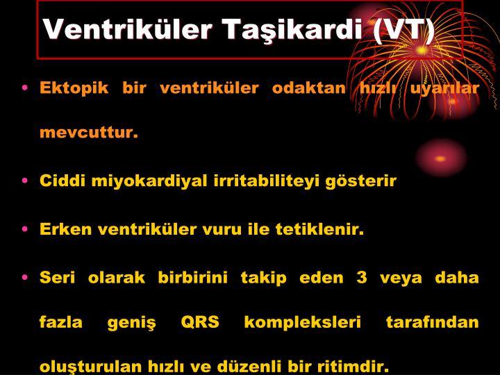 Ventriküler Taşikardi (VT)
