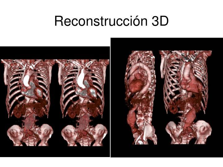 Reconstrucción 3D